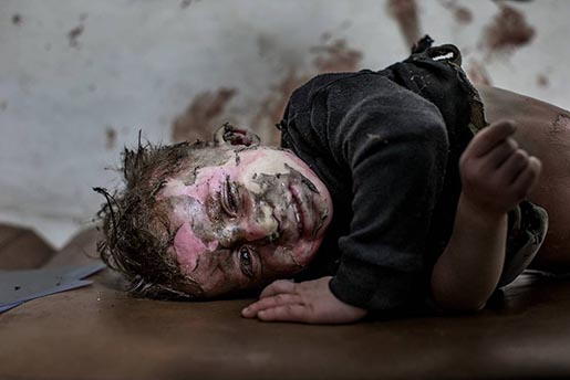 unicef-syria-aleppo-boy